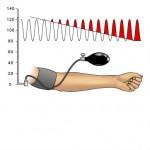 Kalibreringtjek af Blodtryksapparat